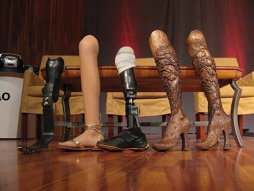 Эйми Маллинз – обладательница 12 пар ног