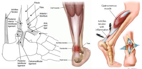 Повреждение ахиллового сухожилия